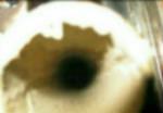 Urinsten i svartvattenrör
