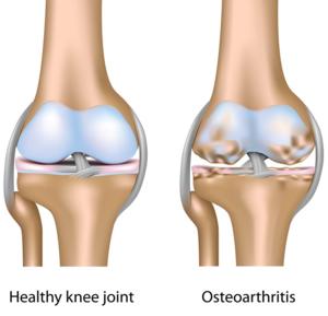 Atros i fot eller knä. Symtom och behandling är likadan