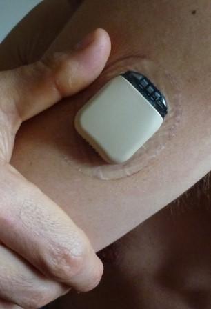 Detta är själva sensorn som sitter på armen.  Denna måste bytas var 5e dag.